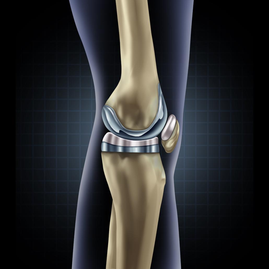 protesi-ginocchio